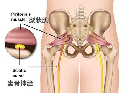 梨状肌与坐骨神经