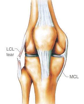 膝关节外侧副韧带损伤及其康复训练方法